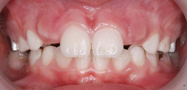 Персистентные зубы диагностика