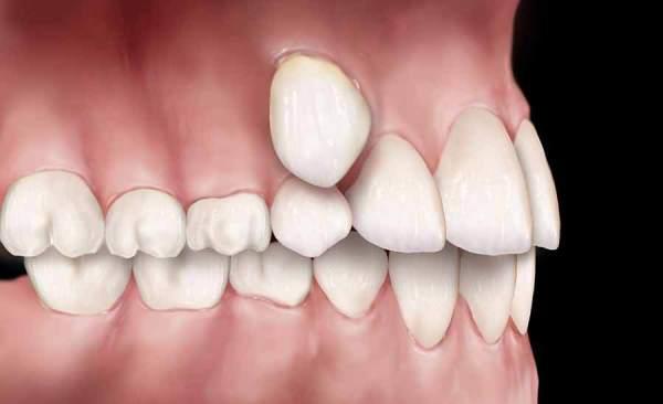 Персистентный зуб – как это явление исправляется