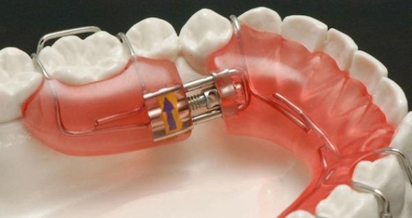 Элементы опоры и фиксации съемных ортодонтических аппаратов