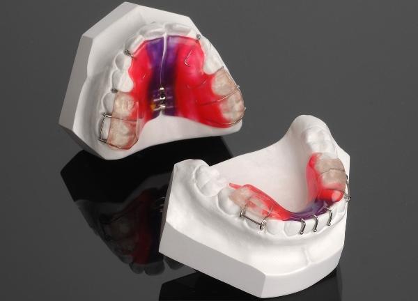 Алгоритмы изготовления элементов съемных ортодонтических аппаратов