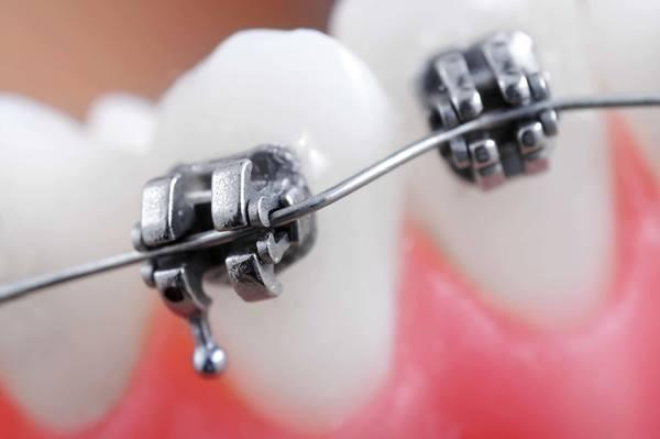 Этапы изготовления элементов съемных ортодонтических аппаратов