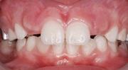 Персистентный зуб