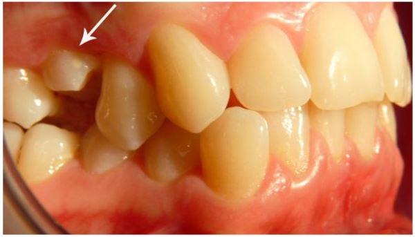 Когда нужно удалять импактные зубы