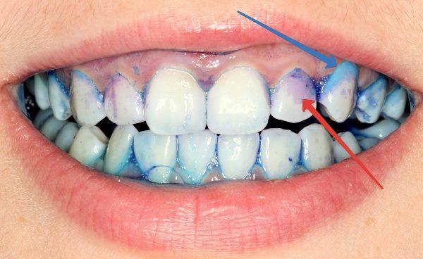 Производители индикатора зубного налета