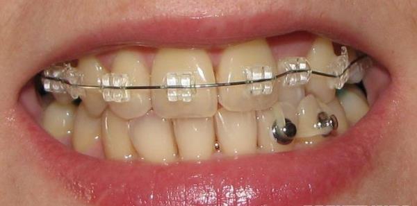 Показания к установке кнопок в ортодонтии