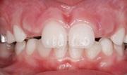 Персистентный зуб что это