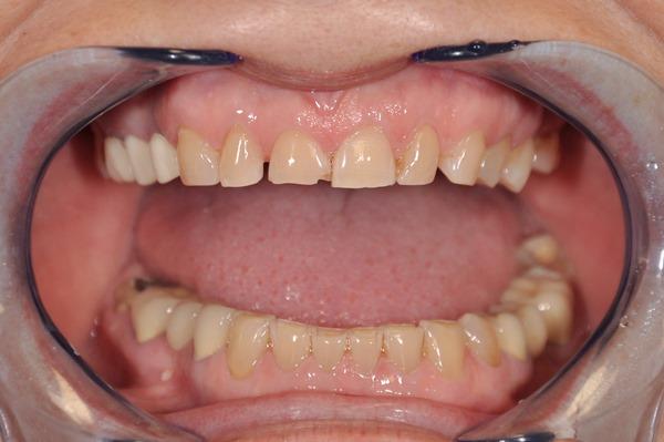 Протезирование зубов с низкими коронками