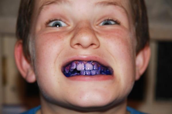 Ополаскиватель индикатор зубного налета