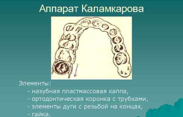 Принцип действия аппарата Каламкарова
