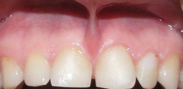 Пластика уздечки верхней губы отзывы