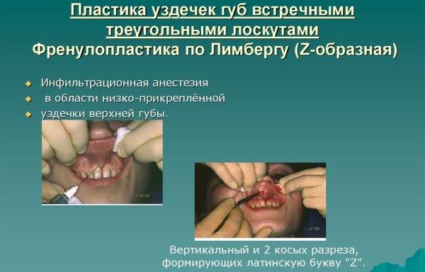 Пластика уздечки верхней губы у детей цена