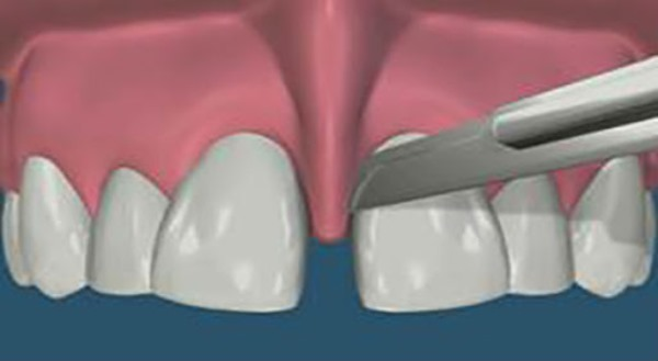 Пластика уздечки верхней губы до и после