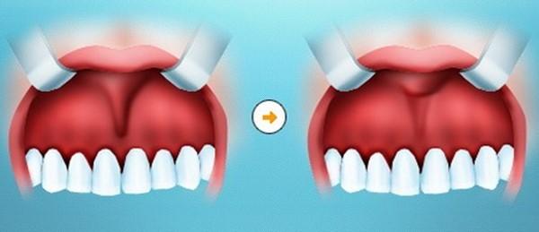 Возможные осложнения после пластики уздечки верхней губы