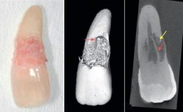 Классификация резорбции корня зуба