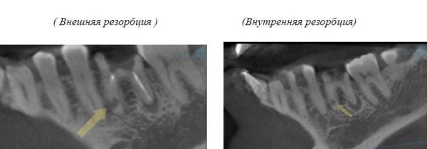 Признаки патологической резорбции корня временного зуба