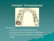 Аппарат Каламкарова цена