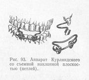 Аппарат Курляндского ортодонтия