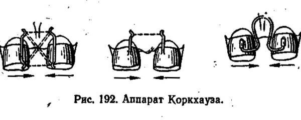 Установка аппарата Коркгауза