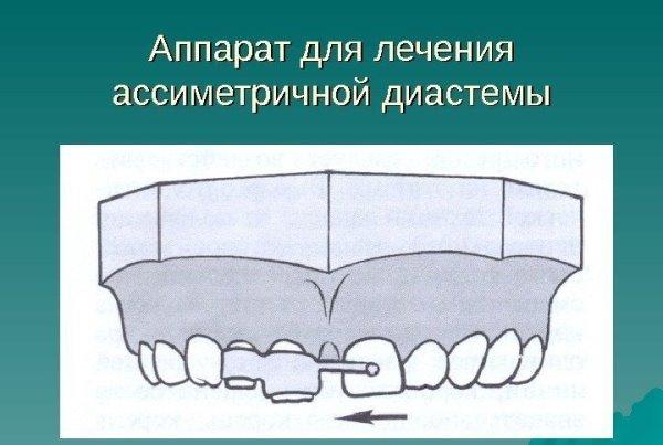 Аппарат коркгауза для поворота зубов вокруг оси