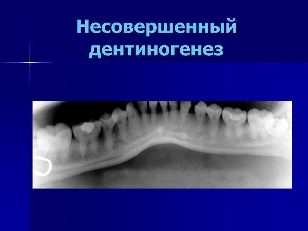 Классификация несовершенного дентиногенеза