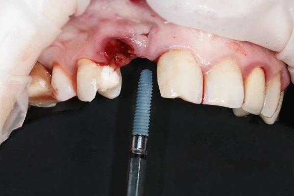 Свищ после имплантации зубов