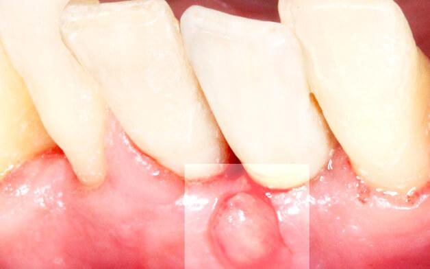 Причины образования свища после имплантации зубов
