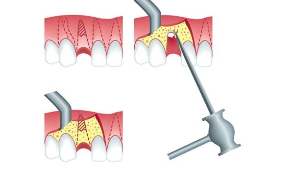 Ампутация корня зуба осложнения