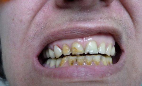 Кислотный некроз твердых тканей зуба