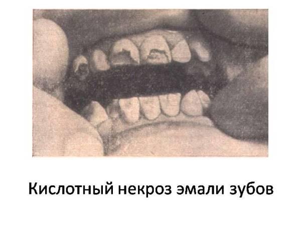Причины развития кислотного некроза зубов