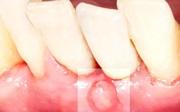 Появился свищ после имплантации зубов