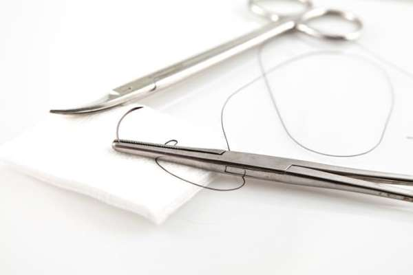 Ушивание лунки при сообщении с пазухой