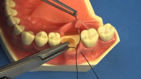 Показания к ушиванию лунки зуба