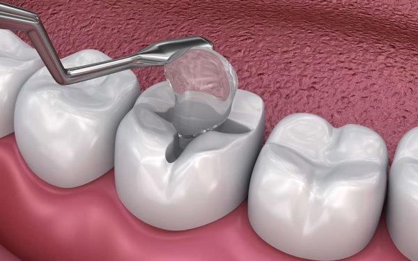 Методики восстановления жевательной группы зубов