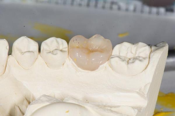 Стоимость реставрации жевательных зубов