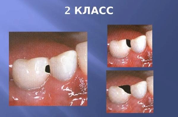Реставрация жевательной поверхности зубов