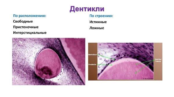 Дентикли гистология