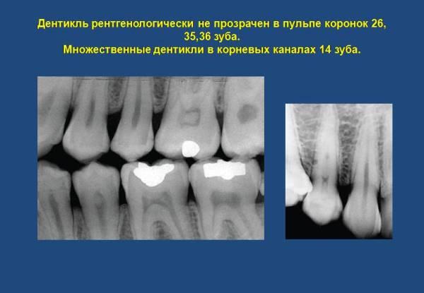 Как проявляются дентикли на рентгенограмме