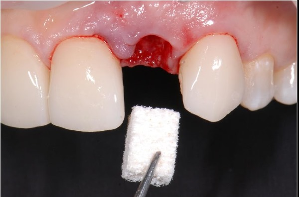 Альвостаз в стоматологии