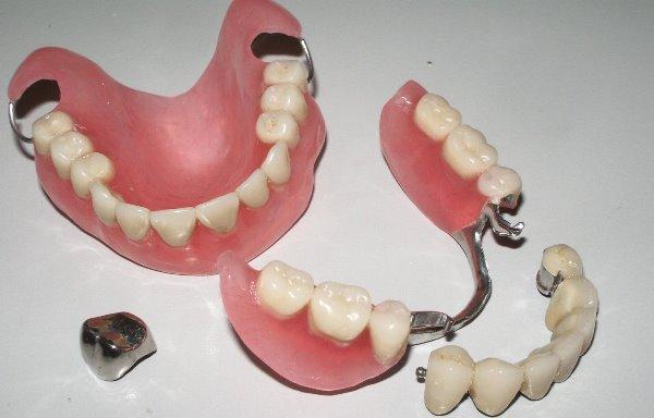 Какие зубные протезы лучше — обзор съемных и несъемных моделей