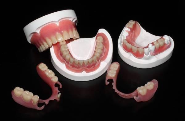 Какой протез зубной лучше съемный или несъемный