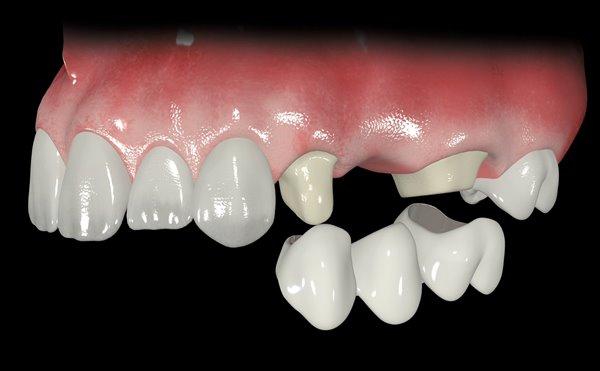 Съемные или несъемные зубные протезы