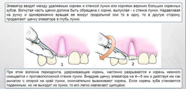 Удаление корней зубов прямым элеватором