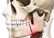 Перелом нижней челюсти лечение