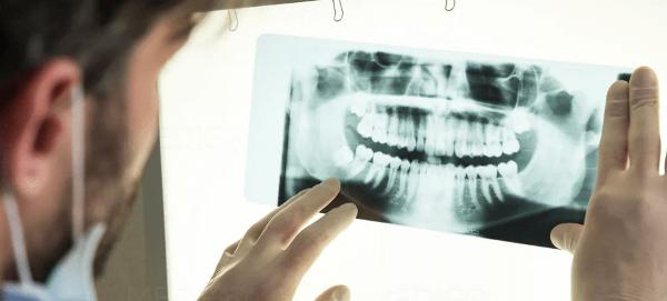 Удаление зуба без стенок