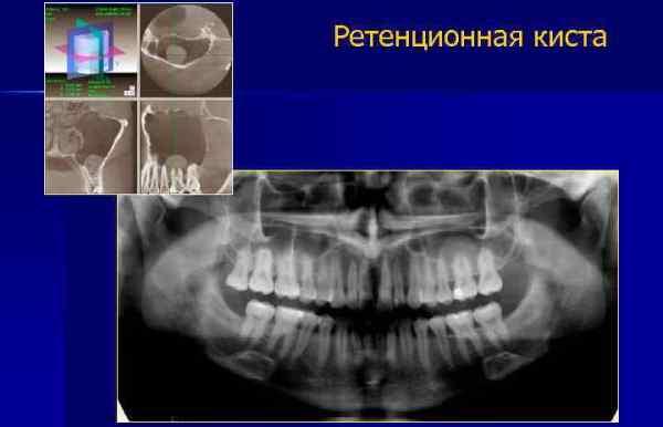 Ретенционная киста зуба диагностика