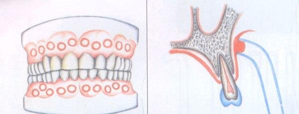 Вакуум массаж в стоматологии