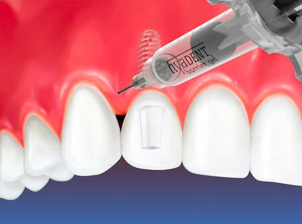 Применение гиалуроновой кислоты в стоматологии