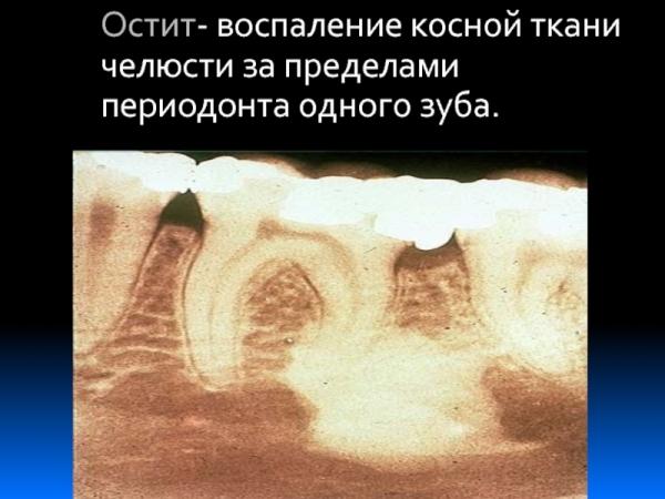 Прогноз лечения остита челюсти