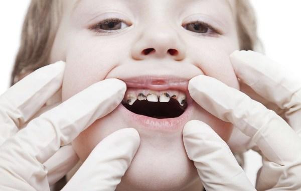 Одонтоклазия зубов
