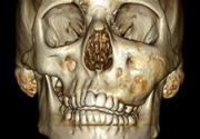 Дисплазия челюсти лечение
